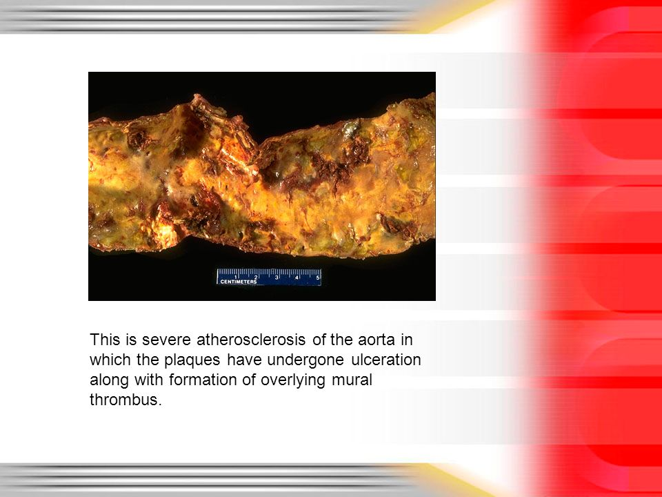 Cardiovascular disease ppt download for Aortic mural thrombus treatment