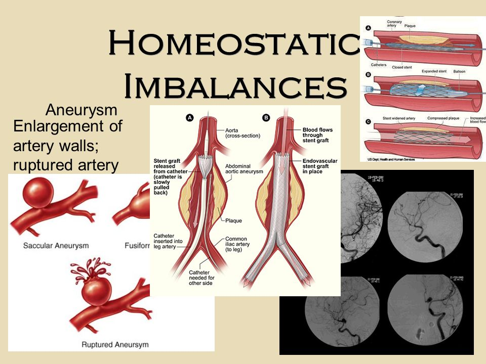 anatomy chapter 3 homeostatic imbalances