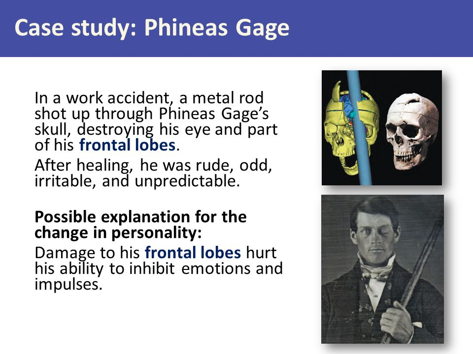 through the case study of phineas gage researchers found that the. Black Bedroom Furniture Sets. Home Design Ideas