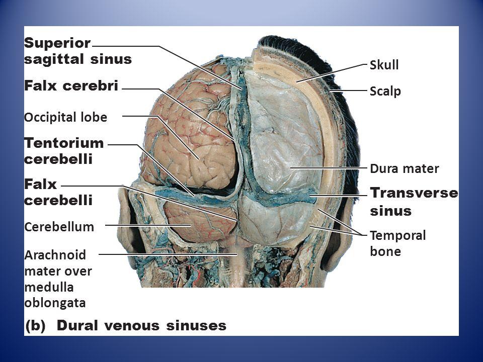 Superior sagittal sinus skull
