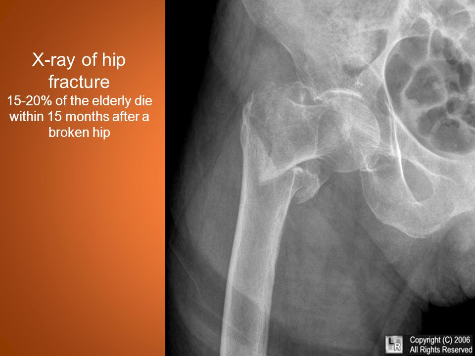 Methylprednisolone And Hip Fracture