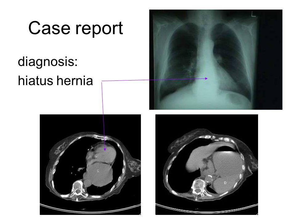 Case report diagnosis: hiatus hernia