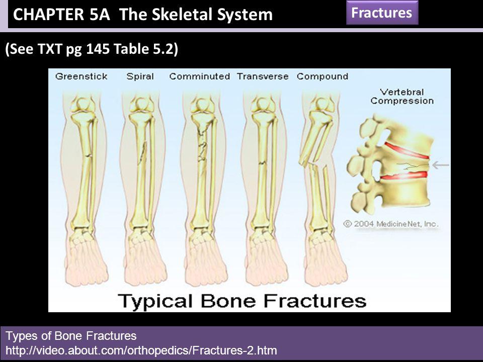 chapter 5 the skeletal system - Ideal.vistalist.co