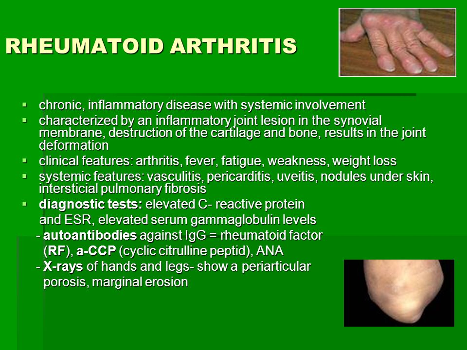 an analysis of the systemic inflammatory autoimmune condition rheumatoid arthitis Extraction and analysis of synovial fluid for the presence of systemic inflammatory disease autoimmune -rheumatoid arthritis.
