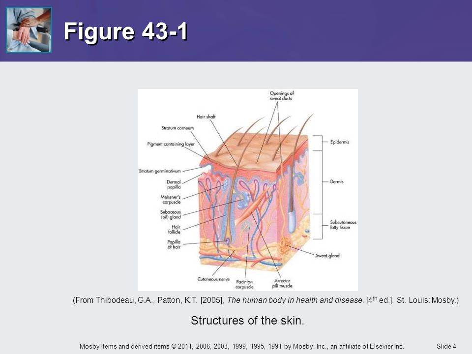 Chapter 43 Care of the Patient with an Integumentary ... | 960 x 720 jpeg 60kB