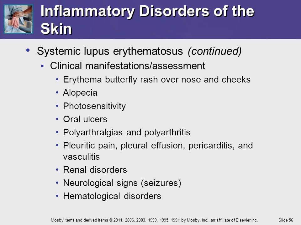 Diagnosis of Systemic Lupus Erythematosus