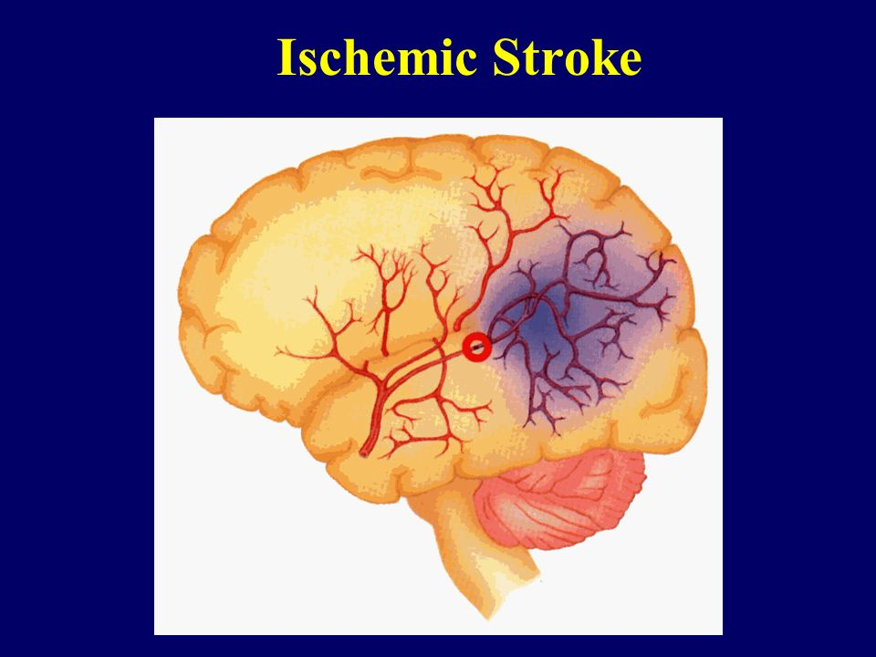 dating ischemic stroke radiographics 2018 guidelines for the early management of patients with acute ischemic stroke by  is to provide an up-to-date comprehensive  radiology personnel.
