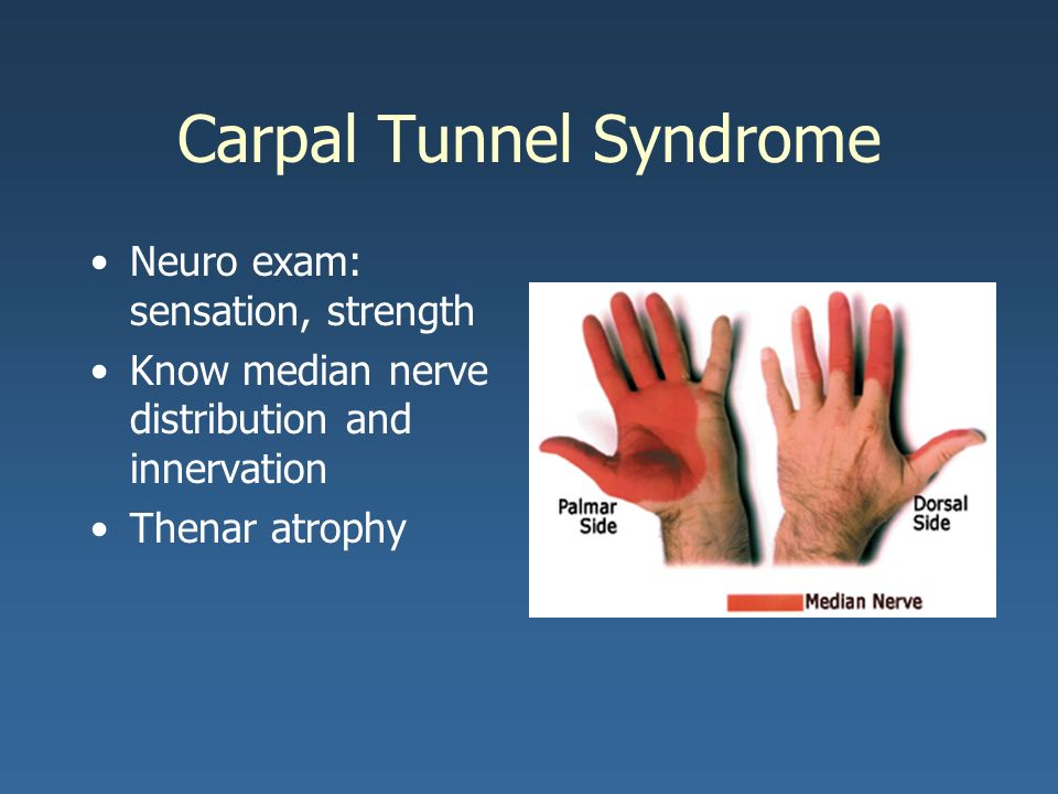 carpal tunnel steroid injection cpt