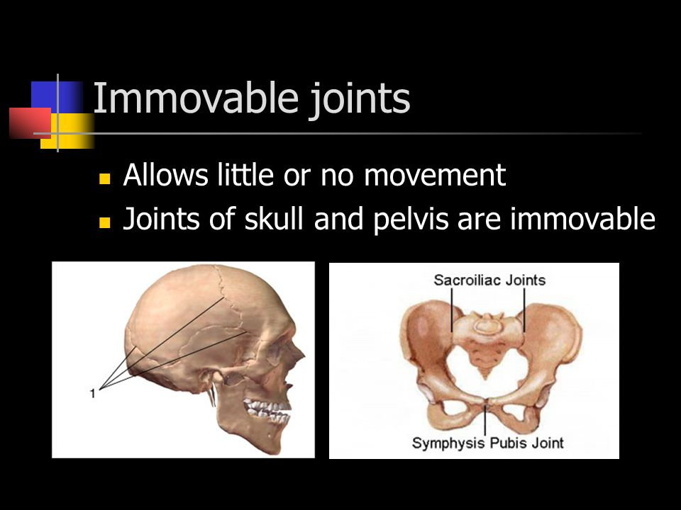 Immovable joints Allows little or no movement