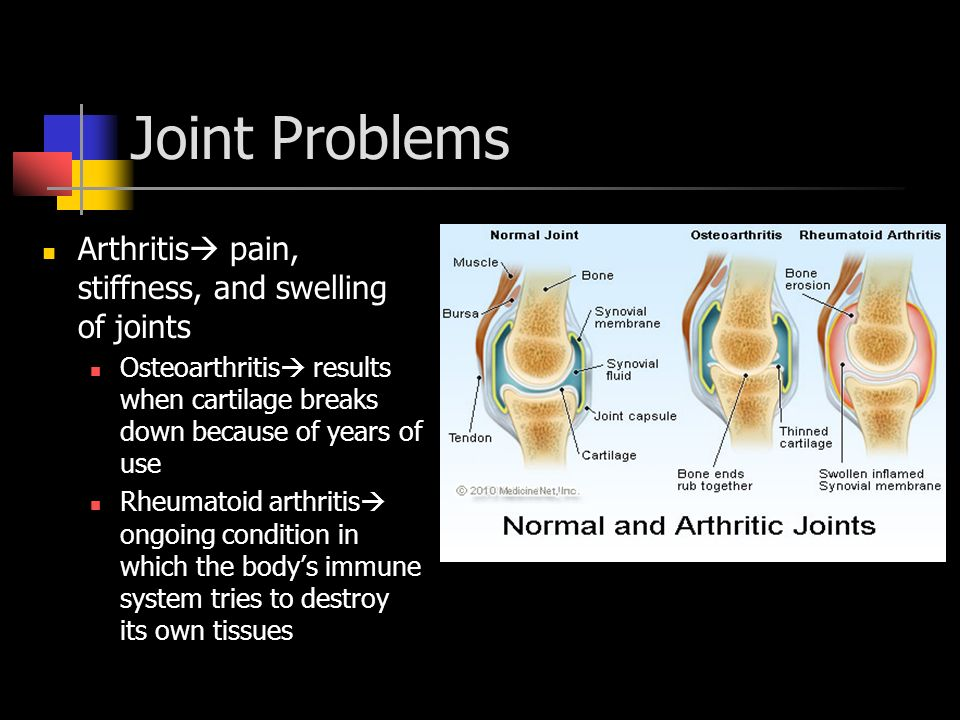 Joint Problems Arthritis pain, stiffness, and swelling of joints