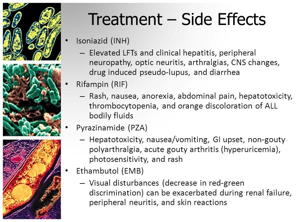 bupropion xl 150 side effects
