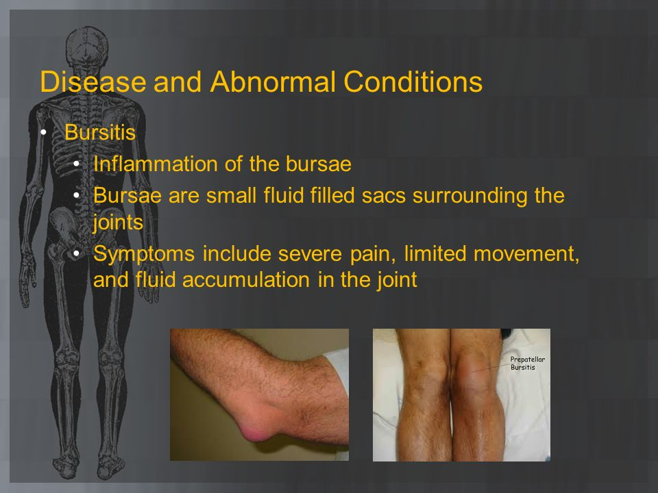 Disease and Abnormal Conditions