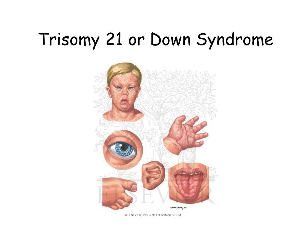 Trisomy 21 child