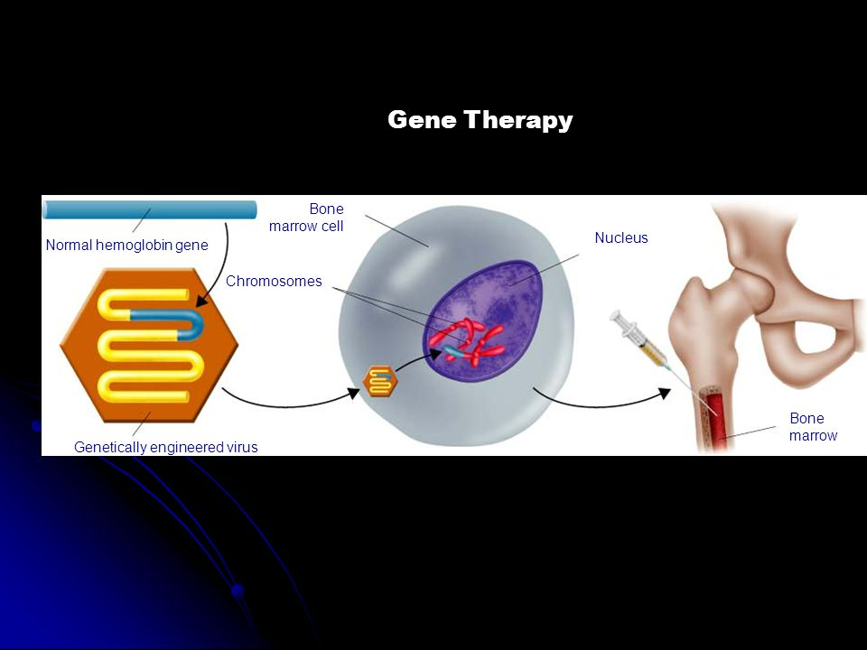 Gene Therapy Bone marrow cell Nucleus Normal hemoglobin gene