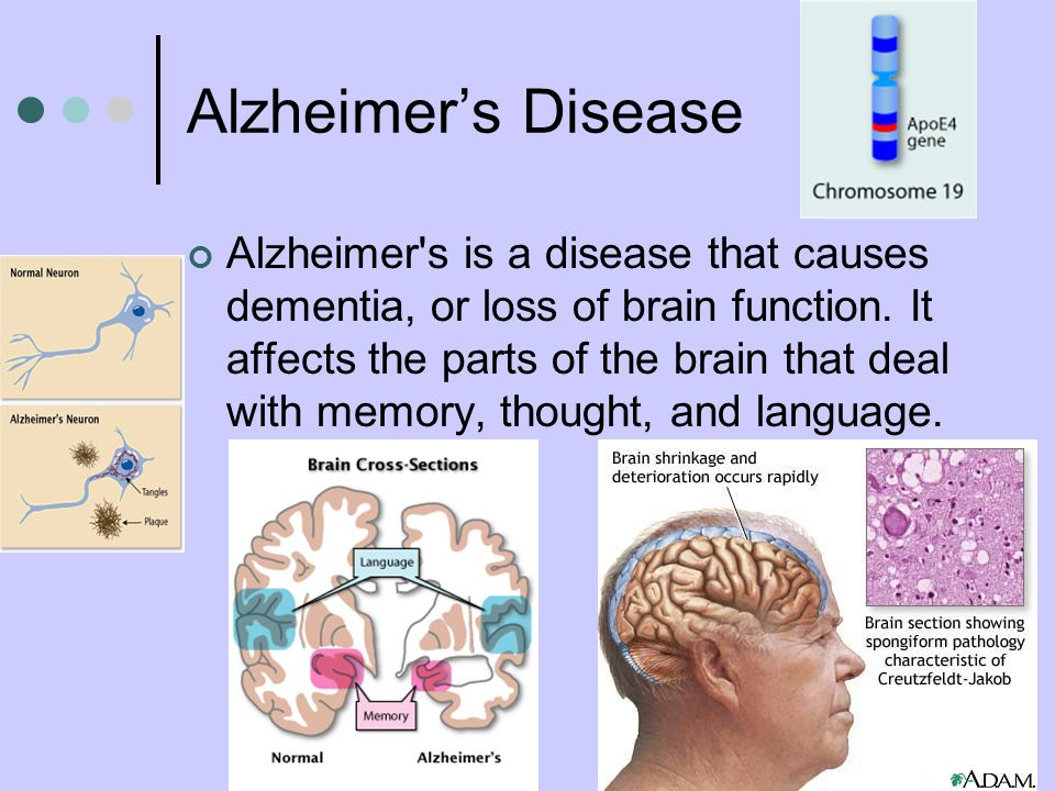 the role of genetics in alzheimers disease The journal of alzheimer's disease is an international multidisciplinary journal to facilitate progress in understanding the etiology, pathogenesis, epidemiology, genetics, behavior, treatment and psychology of alzheimer's disease.