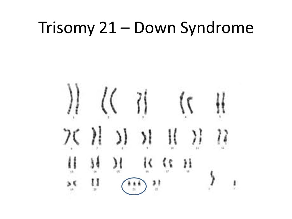 Trisomy 21 – Down Syndrome