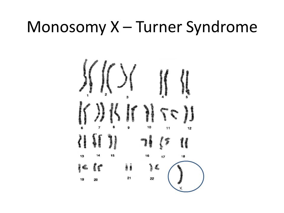 Monosomy X – Turner Syndrome