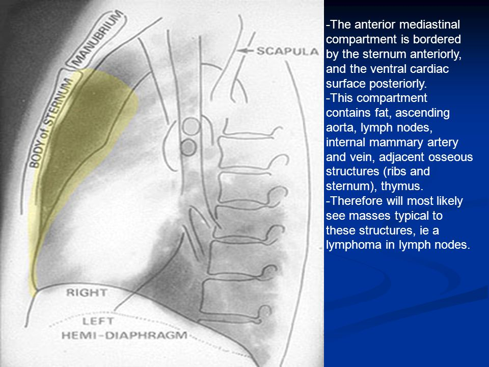 Approach To Mediastinal Masses Ppt Video Online Download