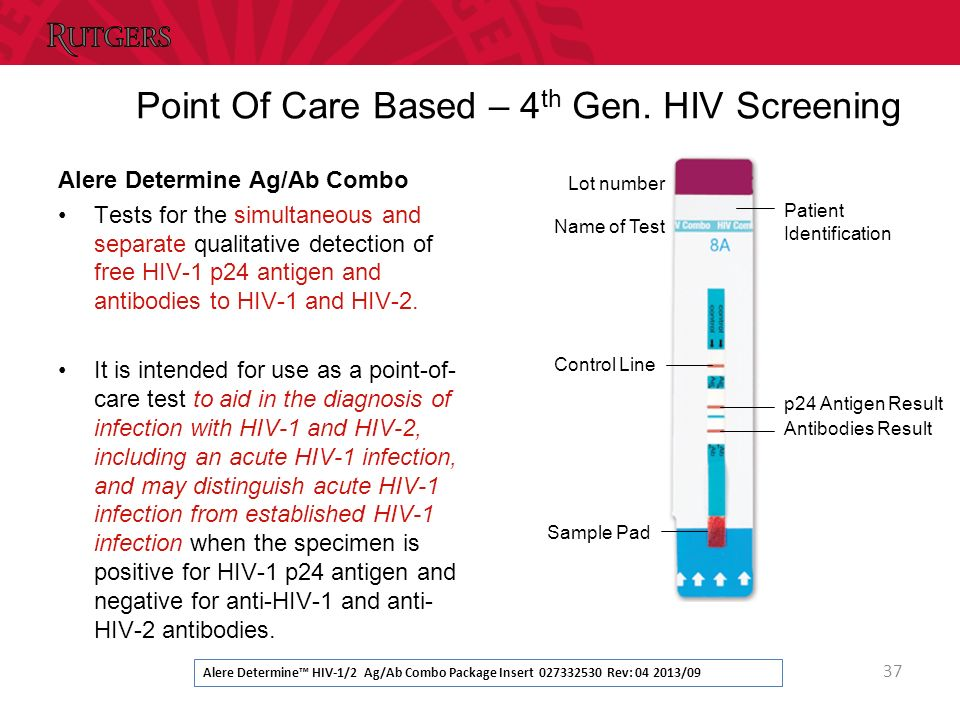 Administrative matters ppt download - Test hiv p24 periodo finestra ...