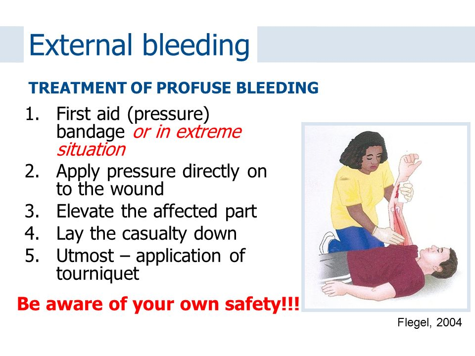 External bleeding First aid (pressure) bandage or in extreme situation