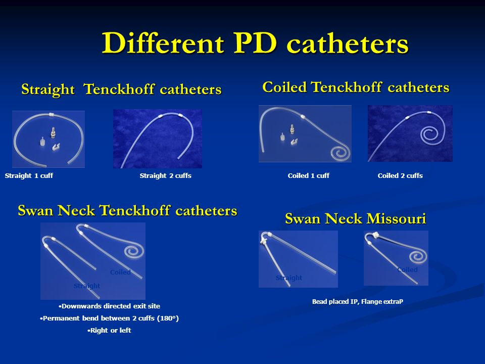 Different catheters part ii how to play 7