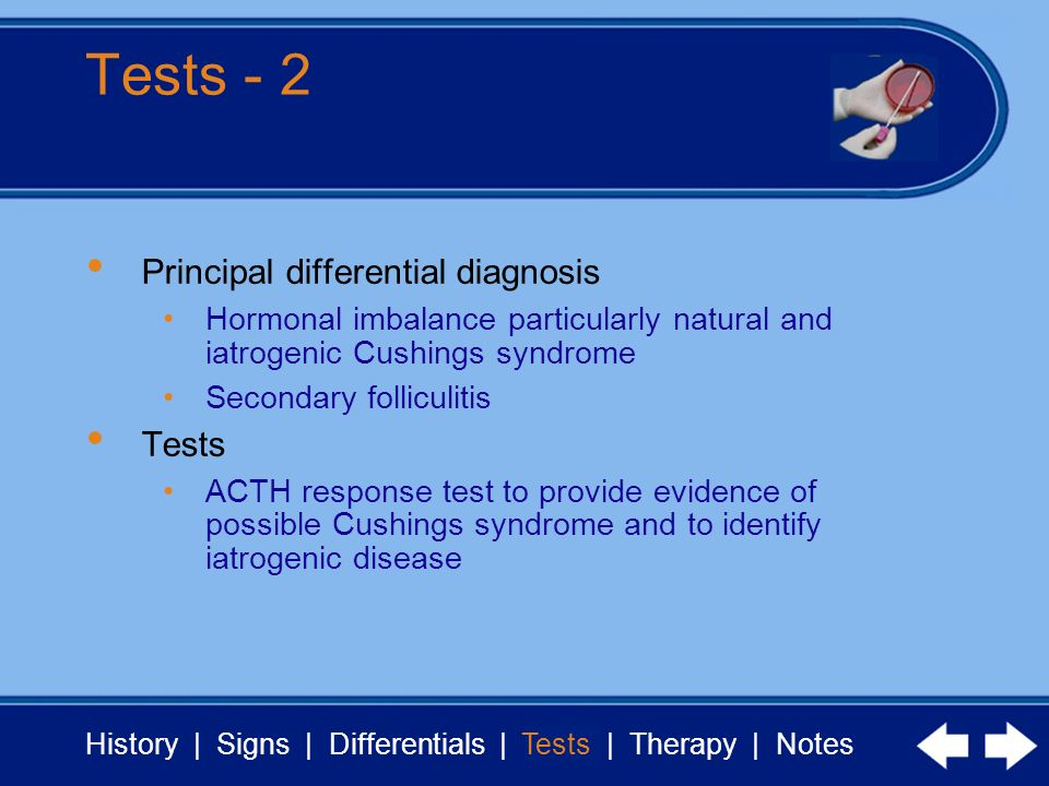 Tests - 2 Principal differential diagnosis Tests
