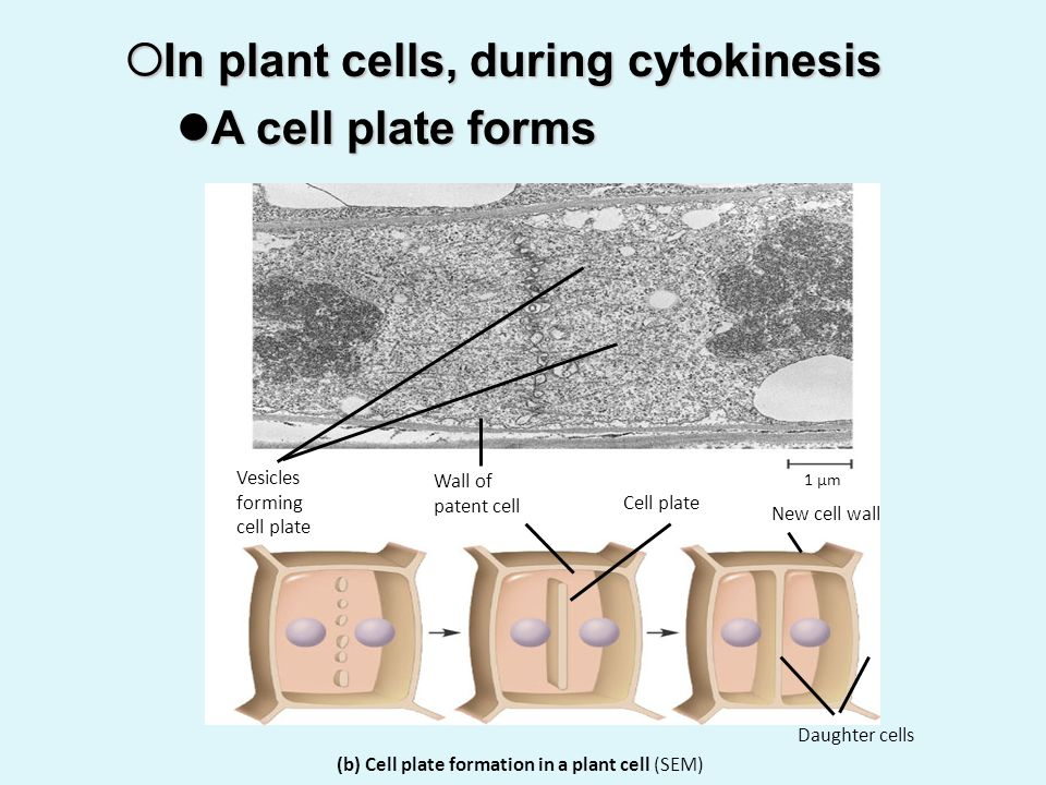 In plant cells, during cytokinesis A cell plate forms