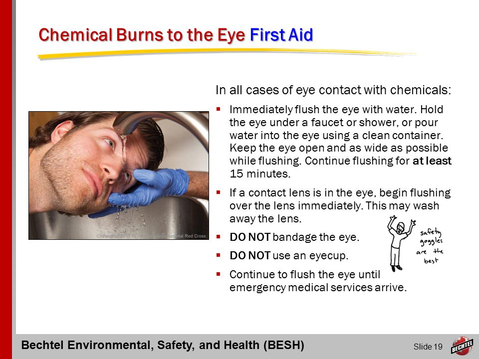 Eye Injuries and First Aid Response