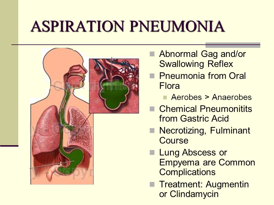 augmentin for pneumonia in adults
