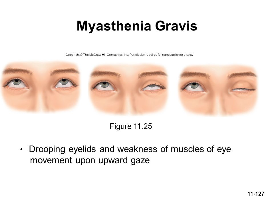 Myasthenia Gravis movement upon upward gaze Figure 11.25