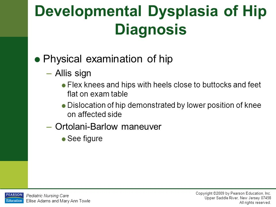 Chapter 20 Care Of The Child With Musculoskeletal