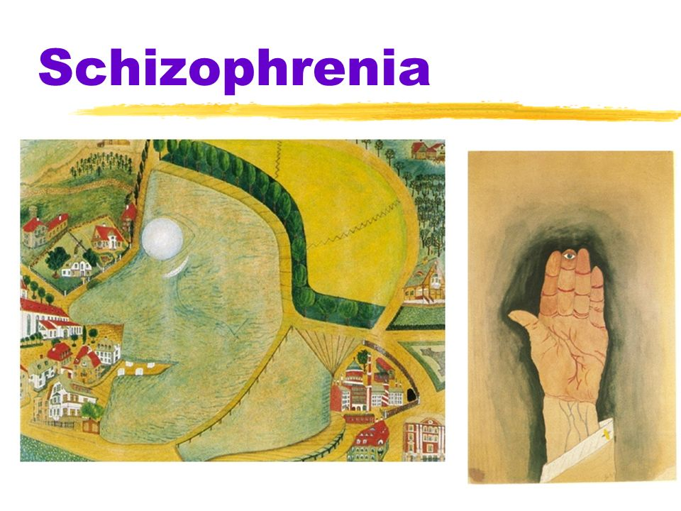 schizophrenia split mind Schizophrenia is one of the leading types of mental disease it literally means splitting of the mind, or split personality schizophrenia is characterized by retreating from reality, indifference, withdrawal, hallucinations and delusions of persecution and omnipotence, often with unimpaired.
