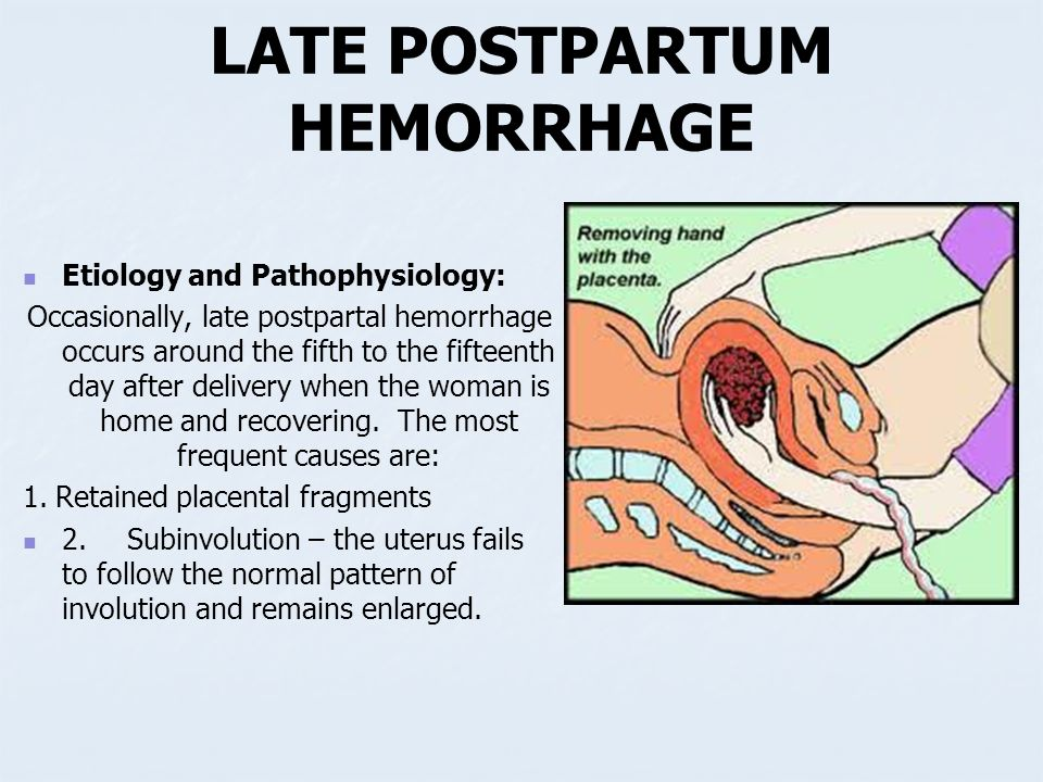 postpartum risk for hemorrhage nursing care The awhonn postpartum hemorrhage  appropriate level of care capable of managing a high risk mother  the postpartum hemorrhage (pph) risk assessment table is .