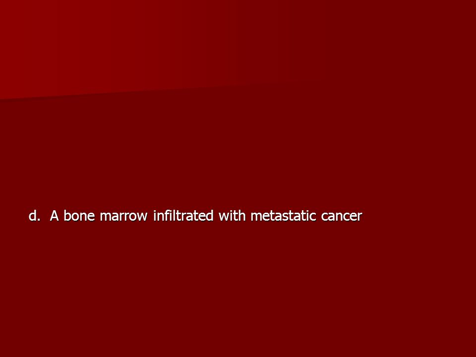 d. A bone marrow infiltrated with metastatic cancer