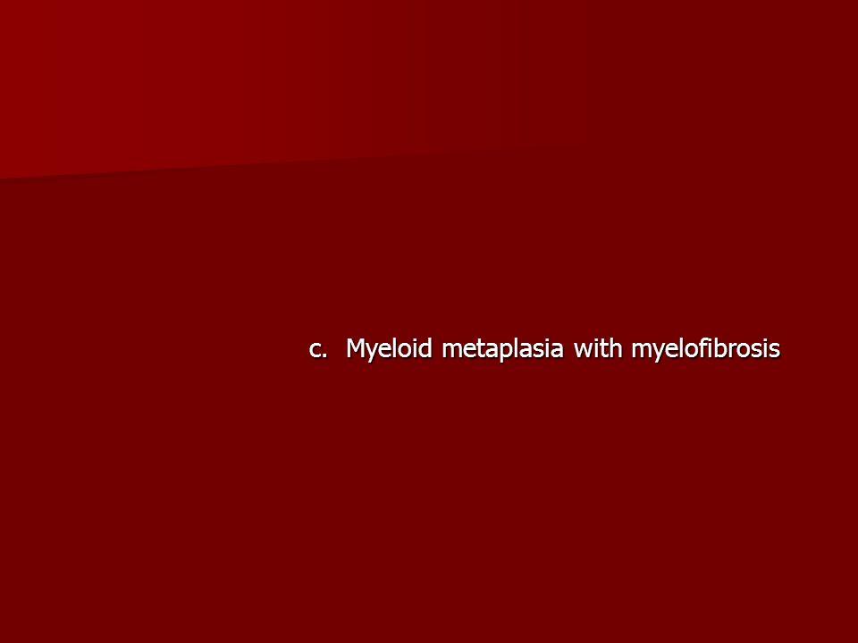 c. Myeloid metaplasia with myelofibrosis