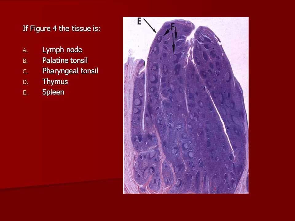 If Figure 4 the tissue is: