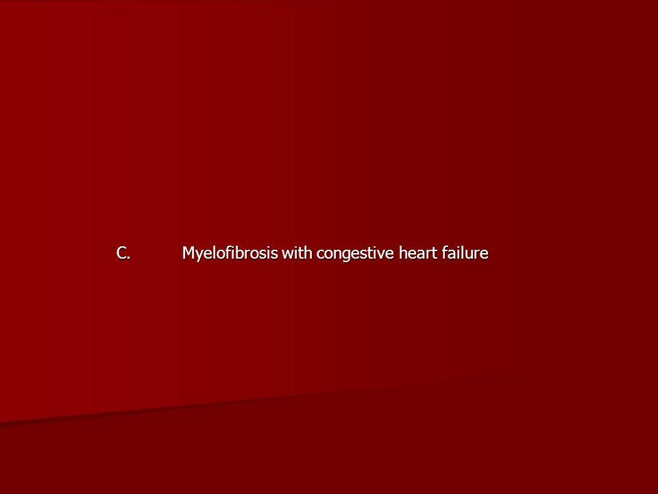 C. Myelofibrosis with congestive heart failure