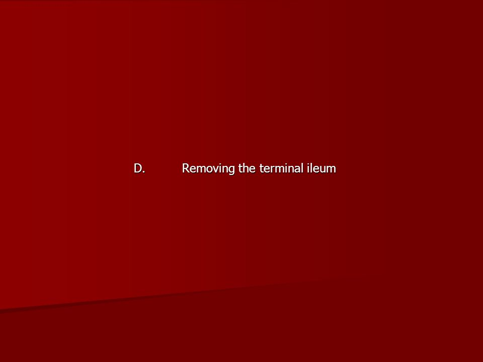 D. Removing the terminal ileum