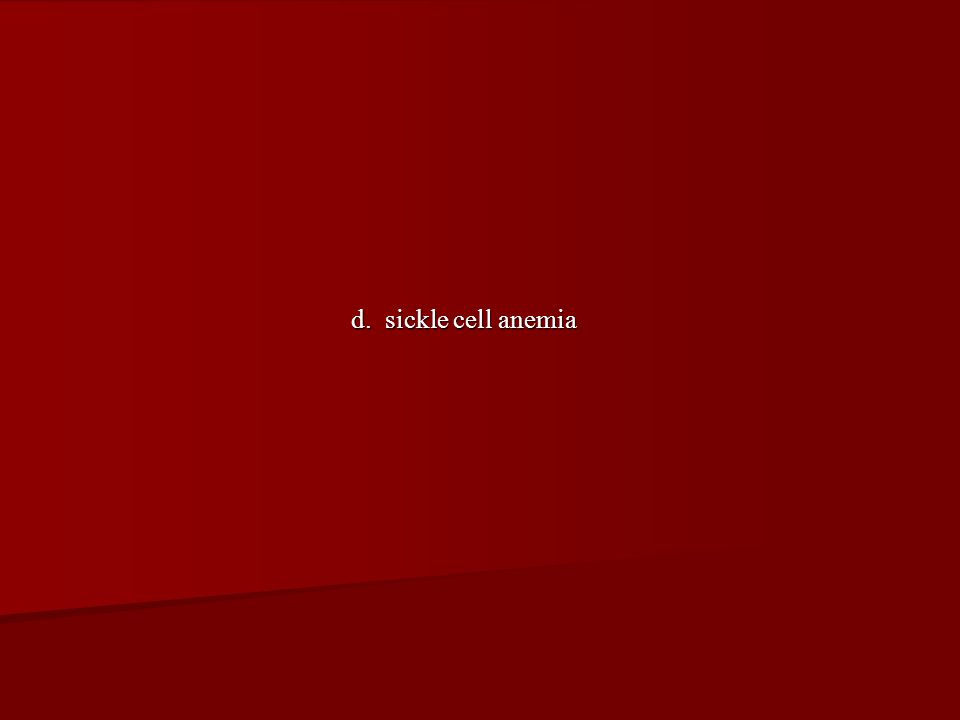 d. sickle cell anemia