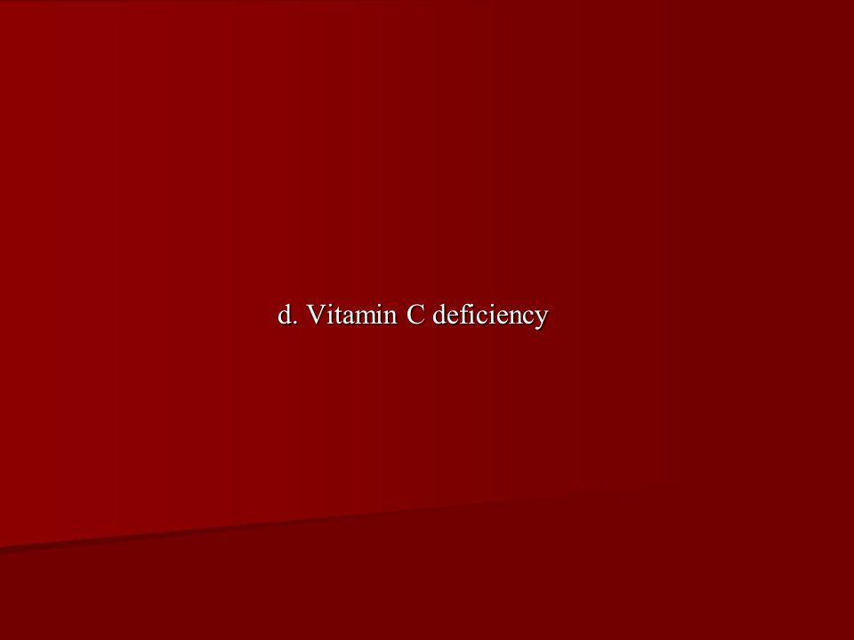 d. Vitamin C deficiency