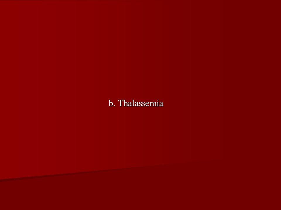 b. Thalassemia