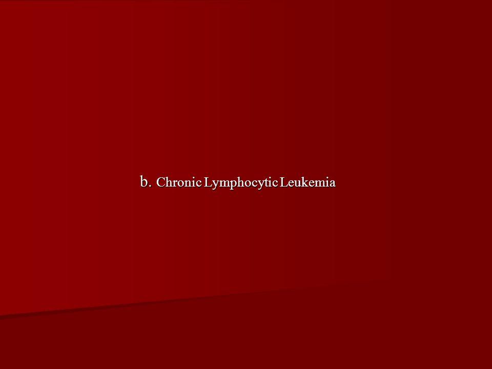 b. Chronic Lymphocytic Leukemia