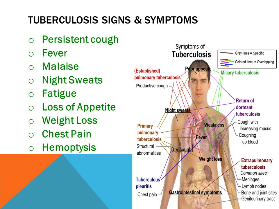 the signs symptoms and treatment of tuberculosis View the most common signs and symptoms of tuberculosis that you need to know about learn how tuberculosis is diagnosed and find helpful books and resources.