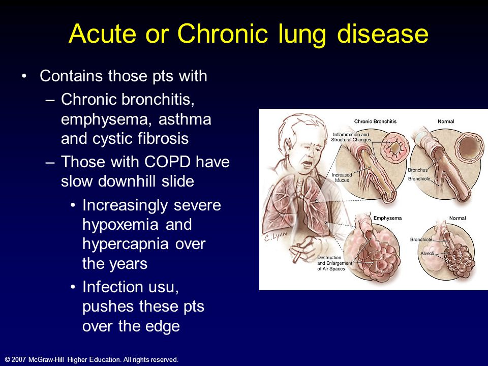 cystic fibrosis and asthma The combination of asthma and being a carrier of genetic variants (mutations and / or polymorphisms) in the cftr gene variant would cause bronchial asthma with mucus hypersecretion this phenotype is characterized by a more severe disease, in terms of control, quality of life, exacerbations and lung.