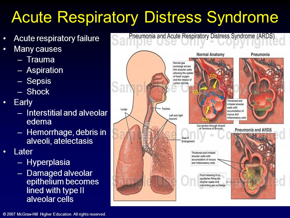 Adult Respiratory Distress Syndrome Ards Respiratory