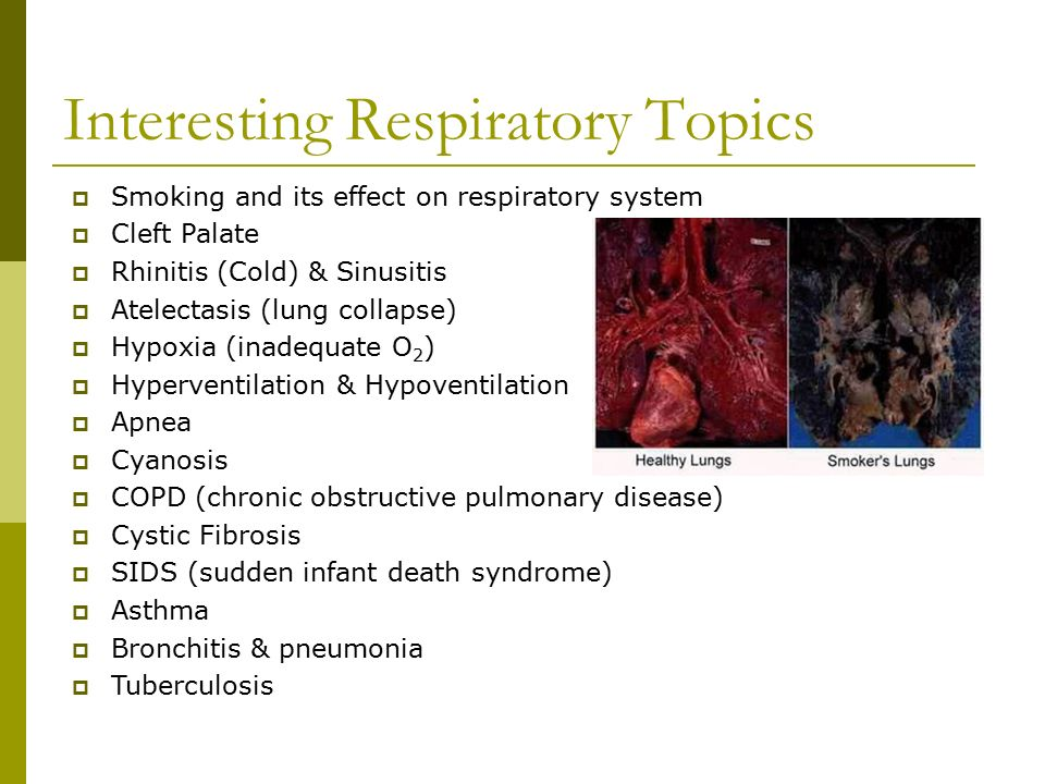 Interesting Respiratory Topics