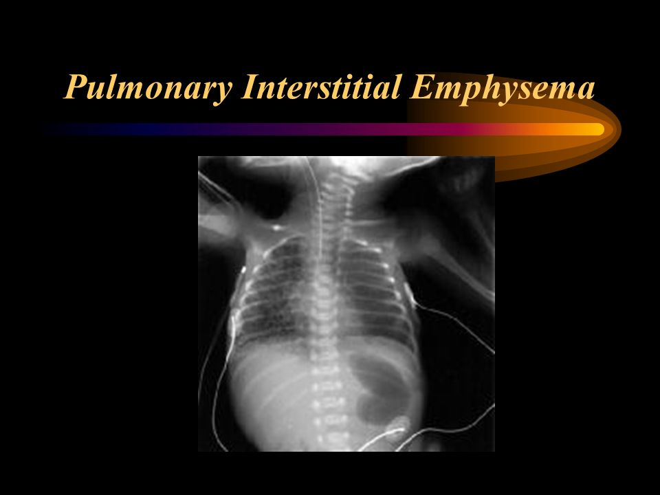 Reading A Neonatal Chest X Ray Ppt Video Online Download