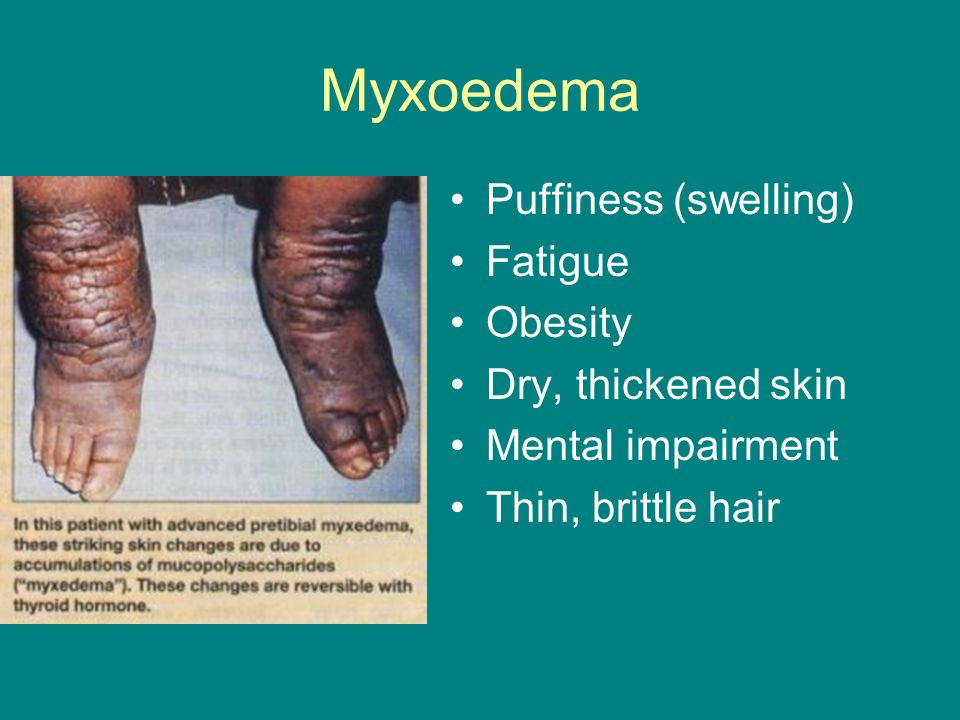 Myxoedema Puffiness (swelling) Fatigue Obesity Dry, thickened skin