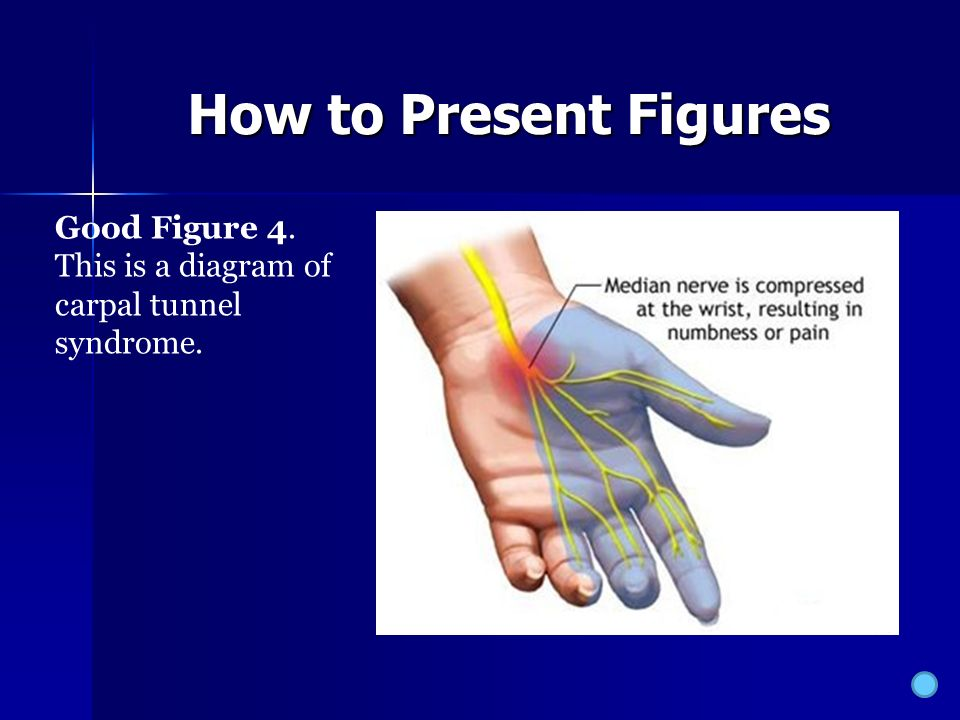 carpal tunnel syndrome thesis Last name and page # to the right i/2″ from the top everything double spaced student name instructor name class course date diagnosis of carpal tunnel syndrome paula is a 38 year old administrative assistant.
