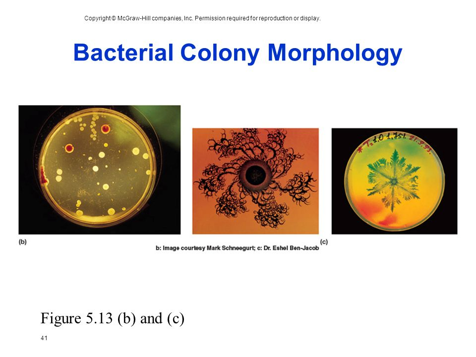 Bacterial Colony Morphology